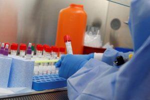 Virüs Tedavisi Kimler İçin Ücretsiz?